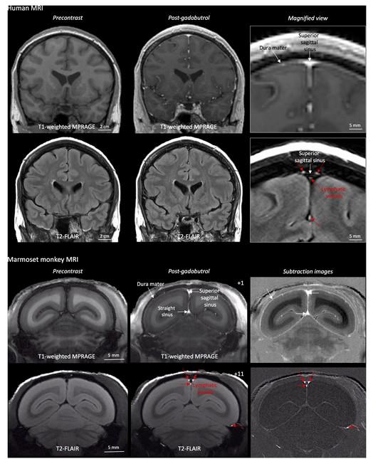 Descubierto cómo drena el cerebro sus desechos