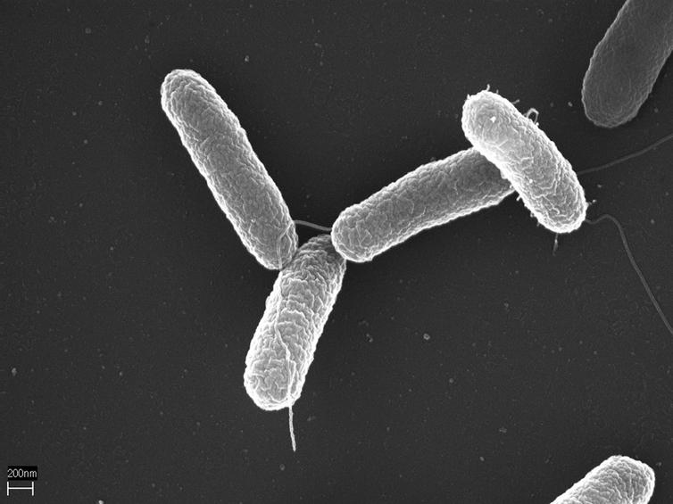 Salmonella typhimurium. Wikimedia Commons