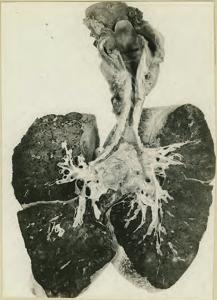 Primera Guerra Mundial: Unos pulmones muestran una estenosis en la tráquea tras la inhalación de gas mostaza. Foto realizada el 12 de enero de 1919. Autor desconocido. Wikimedia Commons