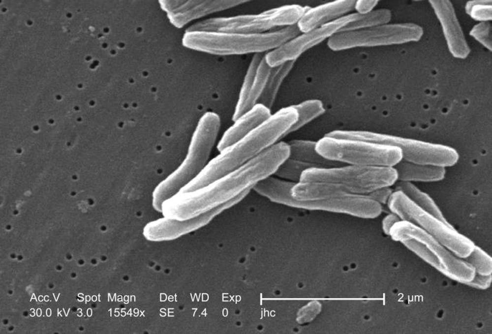 Mycobacterium tuberculosis. Wikimedia Commons / CDC/ Dr. Ray Butler; Janice Carr