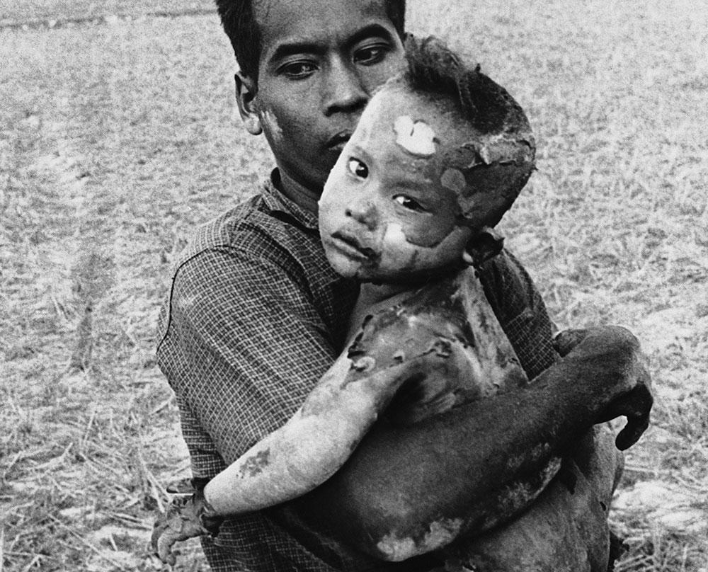 Un niño vietnamita con el cuerpo completamente quemado por el fecto de un bombardeo de napalm, en brazos de su padre, en una foto de marzo de 1964.