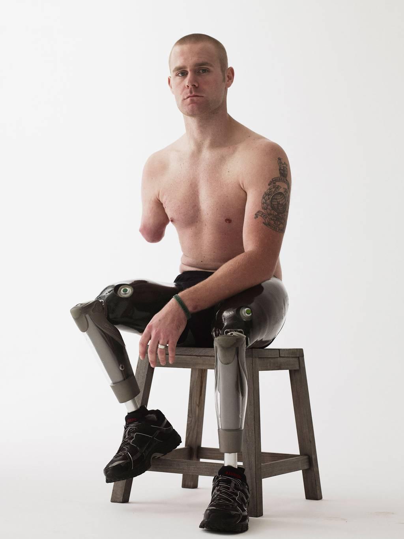 Soldado Karl Hinett, herido en Irak, 18 años