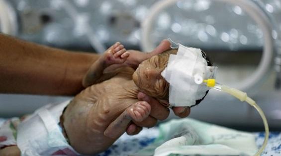 En Yemen un 30% de los recién nacidos son prematuros.- FOTO: REUTERS