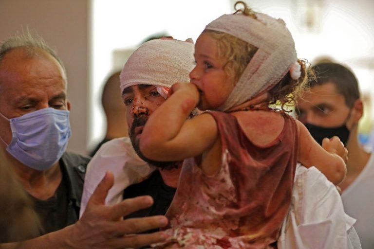 Un padre y su hija, heridois por la explosión del Puerto de Beirut, tras ser atendidos en un hospital. AFP/IBRAHIM AMRO