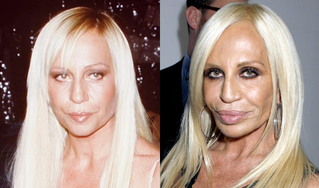 02-Botch-Plastic-Surgeries-Donatella-Versace-lifestyle-1